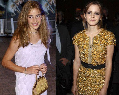 Gyerekszínészből szupersztárok - Emma Watson a 9 éves kis Hermione szerepétől a dögös divatdíváig jutott, mindenki lélegzetvisszafojtva figyeli, mibe fog bele következőnek. Karrierből csillagos ötös!